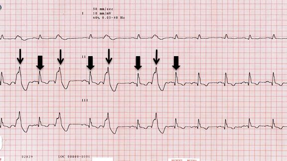 ECG IMAGE 1