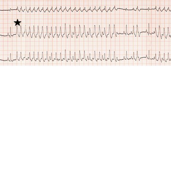 ECG Image with Severe Ventricular Tachycardia